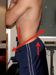 "very ""hip flexor and back extensor"" dominant"